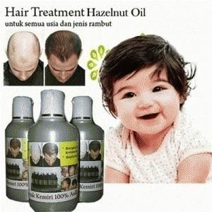 Foto Produk Minyak Kemiri Asli - Kemiiri Oil Penghitam & Penumbuh Rambut dari HERMES TOSERBA