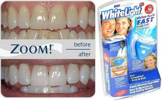 Jual PEMUTIH GIGI WHITE LIGHT TEETH WHITENING - IRD OLSHOP  857ba38441