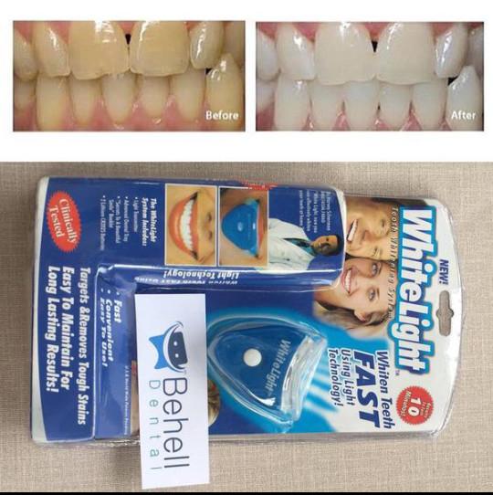 Jual Alat Pemutih Penghilang Karang Gigi Kuning Kolas Tokopedia