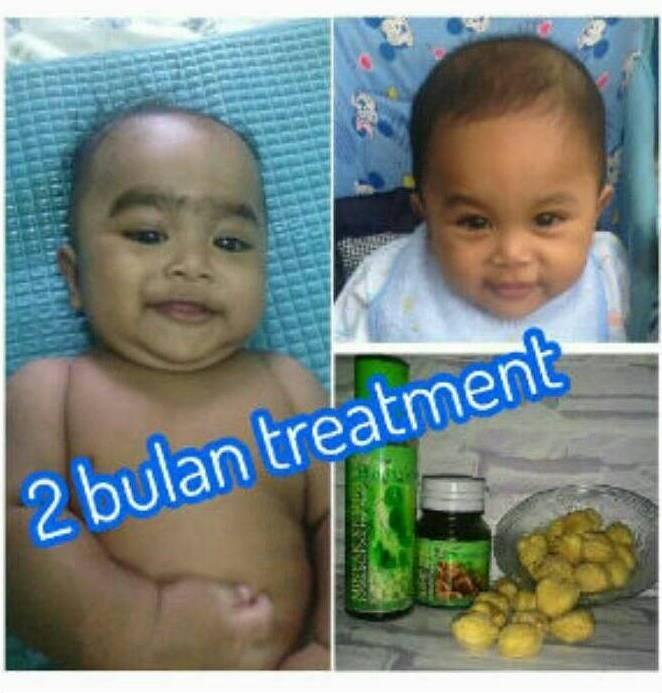 jual minyak+saripati cantiqa kemiri asli penumbuh rambut bayi/dewasa Minyak Dan Saripati Cantiqa Kemiri