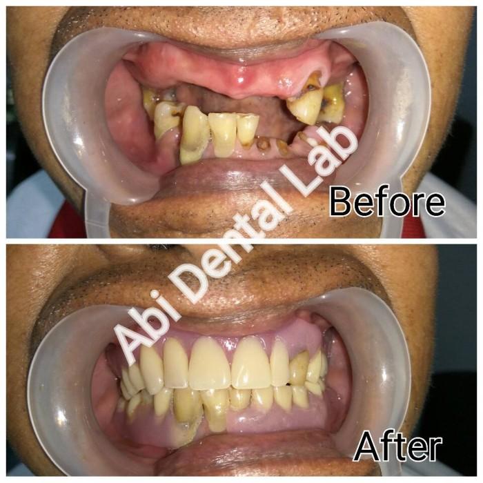 Jual Gigi Palsu Lepasan Thermosens - ABI Dental Lab  17fe4b659b