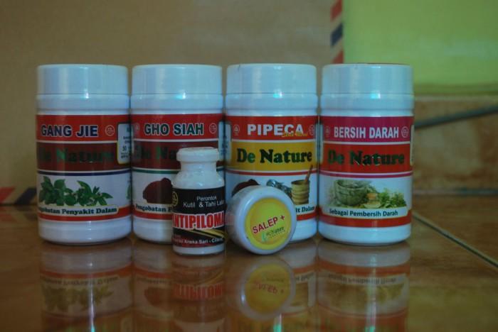 Foto Produk Obat Kutil Kelamin Denature dari Denature Market