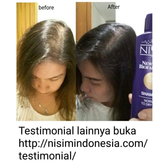 Jual Shampoo Nisim Biofactors + Hair Tonic Nisim Biofactors Normal ... 98bfe24081