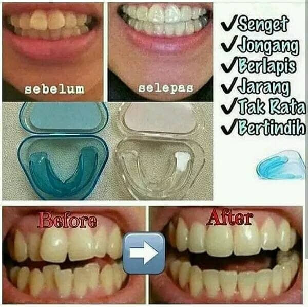 Jual alat merapikan gigi - teeth trainer alighment - behel gigi ... e7c5c3c987