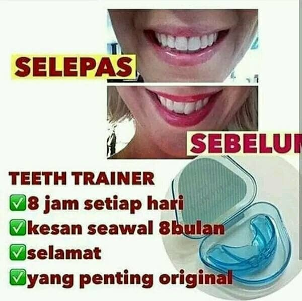 Jual teeth trainer USA - alat merapikan gigi - behel gigi - behel ... bcebbd3a08