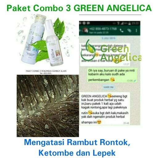 Paket AMPUH Shampo dan Serum Anti Ketombe dan Rontok Combo 3 Green Ang 2e6b072f43