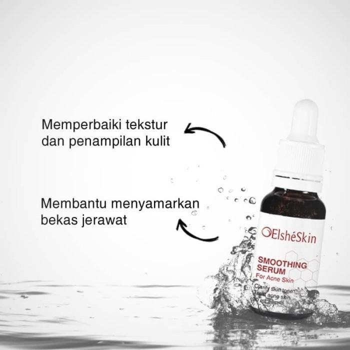 Elsheskin smoothing serum for acne skin (jerawat)