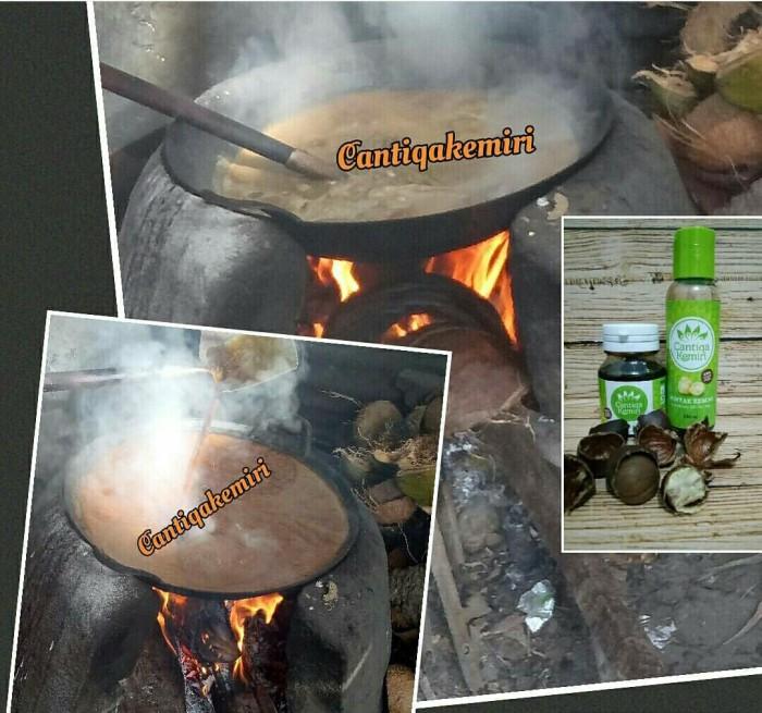 jual paket penumbuh rambut minyak & saripati cantiqa kemiri asli (2 Minyak Dan Saripati Cantiqa Kemiri