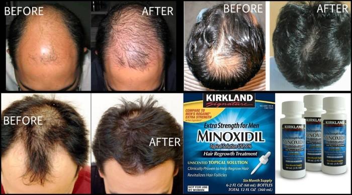 Hasil gambar untuk kirkland minoxidil