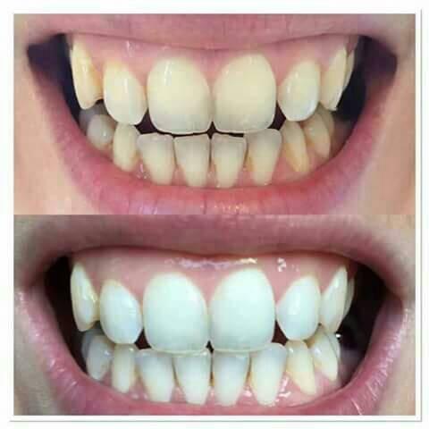 Jual Pasta Gigi Odol Untuk Perokok Peminum Kopi Teh Akut Gigi