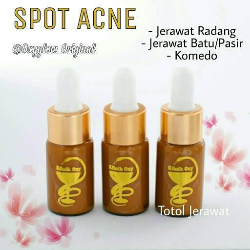 Foto Produk Spot Acne / salep acne /penghilang jerawat dari OXYGLOW ORIGINAL