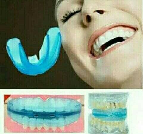 harga Kawat gigi bracket gigi karet behel lepas pasang Tokopedia.com