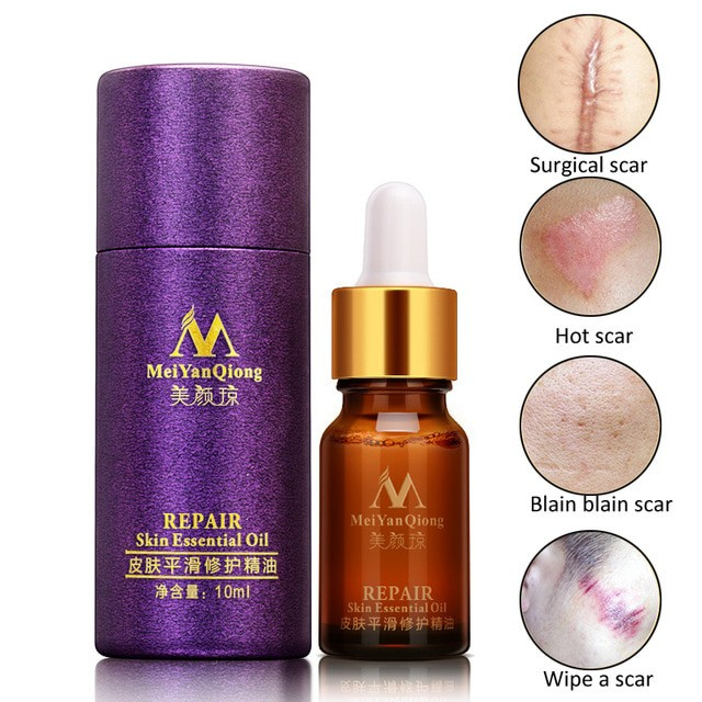 Meiyanqiong Serum Wajah Acne Scar Treatment - Serum Penghilang Bopeng - Blanja.com