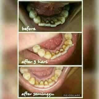 Jual Pasta Gigi Nasa Pemutih Gigi Memutihkan Gigi Kuning