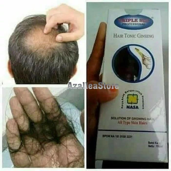 Triple Six Nasa/Obat Rambut Rontok Herbal/Penumbuh Rambut Botak