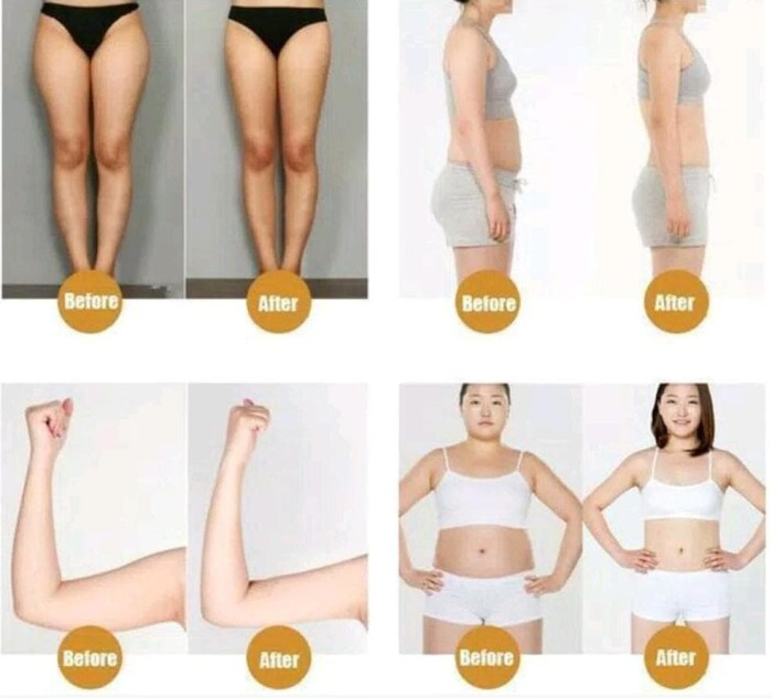 Jual Slim Cream Fat Burn Slimming Body Lift Cellulite Cream Professional Jakarta Selatan Davie Tokopedia