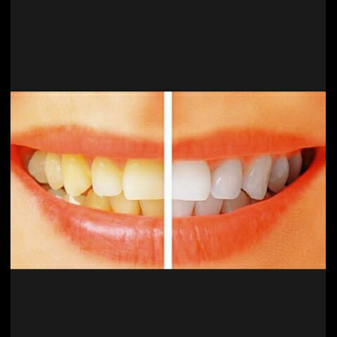 Jual Tiens Herbal Tooth Paste Pemutih Gigi Alami Paling Cepat Www