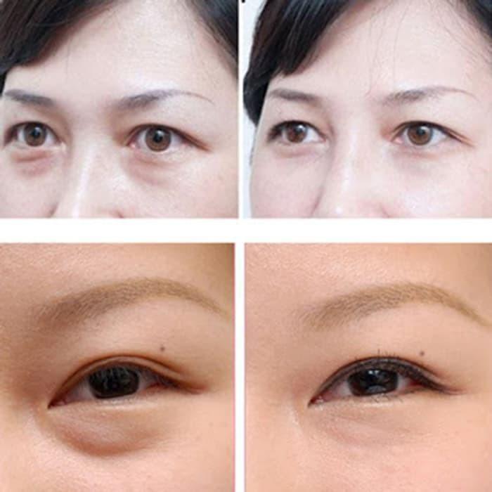 Promo Theraskin Eye Cream With Peptide -- Cream Perawatan Kantung Mata