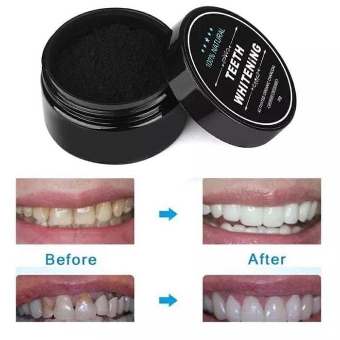 Jual Pemutih Gigi Teeth Whitening Carcoal Organic Perawatan Murah
