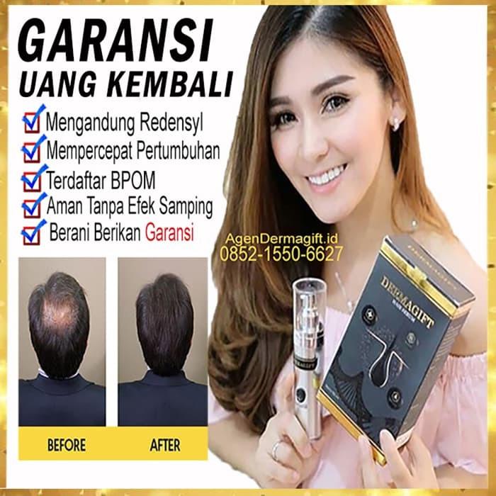 Foto Produk Dermagift Hair Serum Obat Vitamin Rambut Rontok Hair care Redensyl dari Agen Dermagift Original