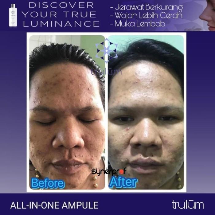 Jerawat Terus Muncul Karena Menggunakan Cream Pemutih Wajah