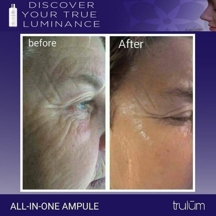 harga Skincare original ! trulum synergy-hilangkan keriput tanpa bahan kimia Tokopedia.com
