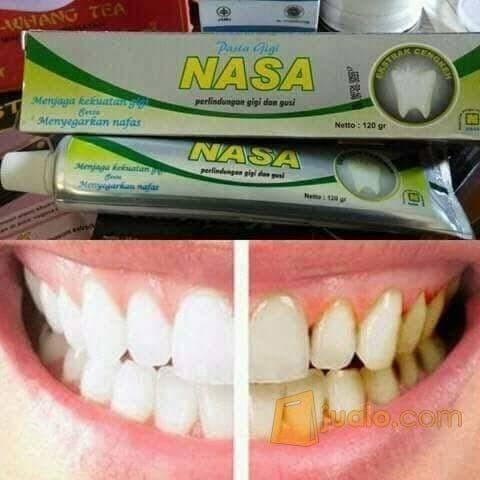 Jual Pasta Gigi Nasa Ampuh Memutihkan Gigi Berbau Berwarna Gelap