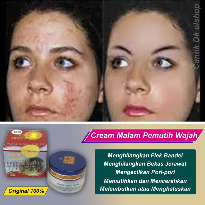 Cream anti flek / cream anti noda / cream pembersih flek / best seller