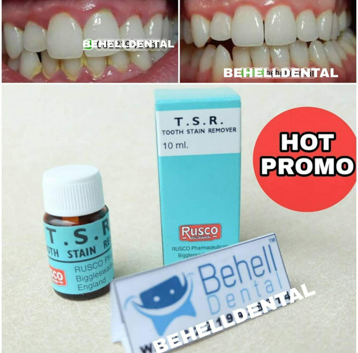 Jual Pemutih Gigi Ampuh Tsr Behell Dental Tokopedia