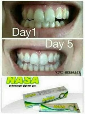 Jual Pasta Gigi Herbal Pemutih Gigi Whitening Tooth Paste Na Diskon
