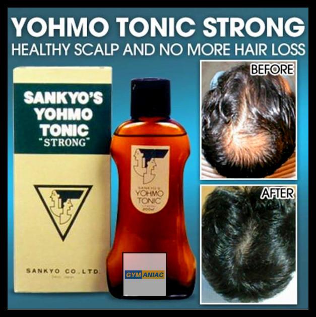 harga Yohmo tonic 200ml hair growth serum obat perawatan mengatasi kebotakan Tokopedia.com