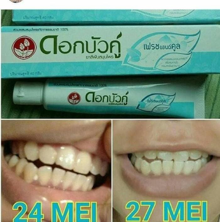 Jual Pasta Gigi Pemutih Gigi Dokter Thailand Murah Responshop66