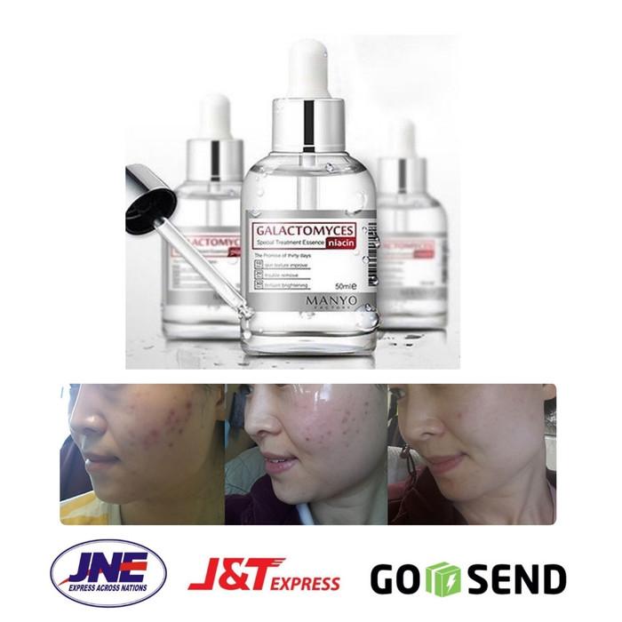 harga Manyo factory - galactomyces niacin special treatment essence 50ml Tokopedia.com