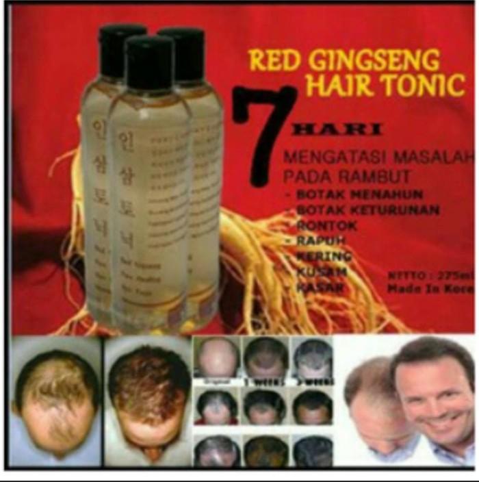 Obat herbal penumbuh rambut botak,mengatasi rambut rontok