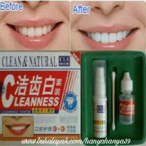 Jual Pemutih Pembersih Gigi Menghancurkan Karang Gigi Membersihkan