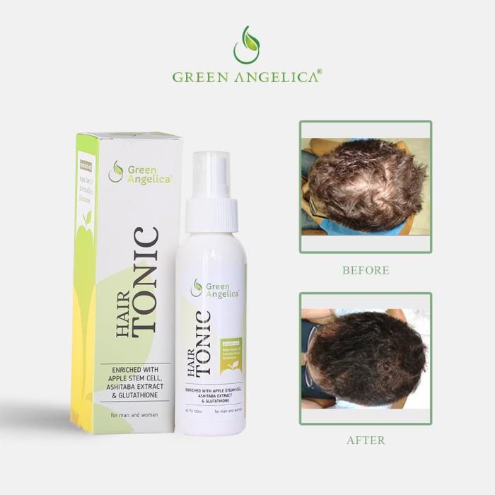 Foto Produk GREEN ANGELICA HAIR TONIC PENUMBU RAMBUT ALAMI HERBAL dari enzylab synergi