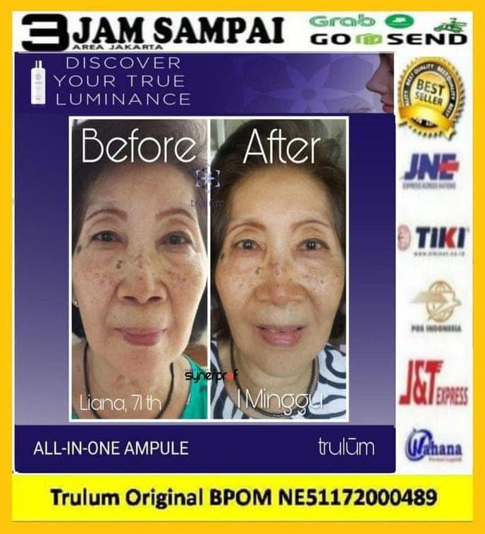 Foto Produk Hilangkan Flek Hitam Di Wajah | Pemutih Wajah Aman Dan Cepat dari Abdadstore