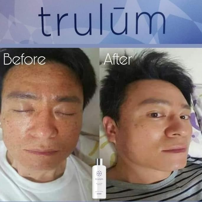Foto Produk Pengganti Crem Jerawat Ampuh | Trulum Spray Pemutih Wajah Aman dari Adirastore2