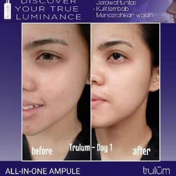 Foto Produk Promo !! Trulum Plus 120 ml Plus Paket Pemutih Wajah Aman dan Ampuh dari Adirastore2