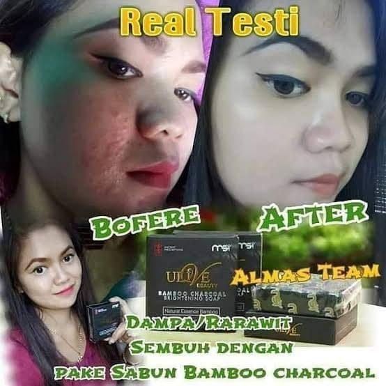 Review Sabun Bamboo Charcoal Msi Untuk Wajah Berjerawat