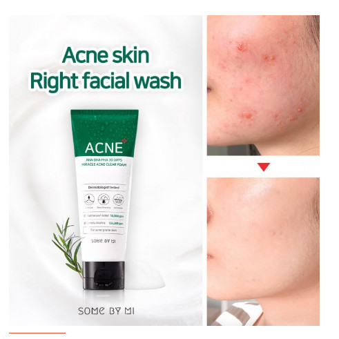 Jual SOMEBYMI Some By Mi AHA/BHA/PHA 30 DAYS MIRACLE ACNE CLEAR ...