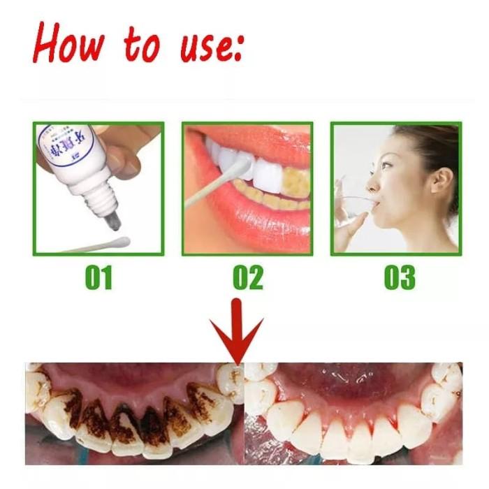 Yabanjing Pemutih Dan Pembersih Plak Karang Gigi Noda Bekas Kopi Teh Aerish