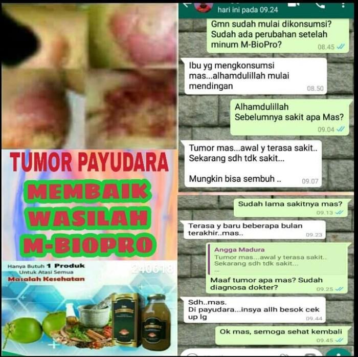 Foto Produk M BIOPRO Obat Tumor Jinak-Ganas Payudara-Otak-Rahim-Usus Ampuh Mbiopro dari Tasik Store