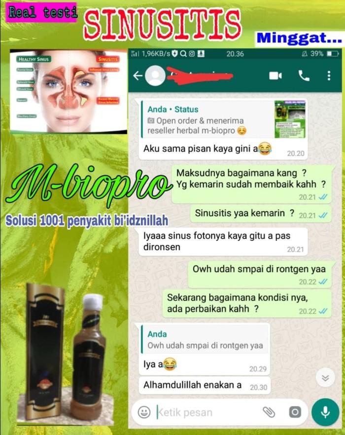 Foto Produk M BIOPRO Obat Sinusitis Polip Hidung Maksilaris-Akut-Kronis Mbiopro dari Tasik Store