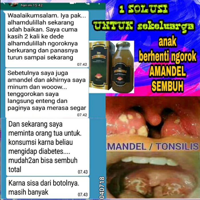 Foto Produk M BIOPRO Obat Amandel Bengkak -Bernanah-Besar-Batu-Tenggorokan Mbiopro dari Tasik Store