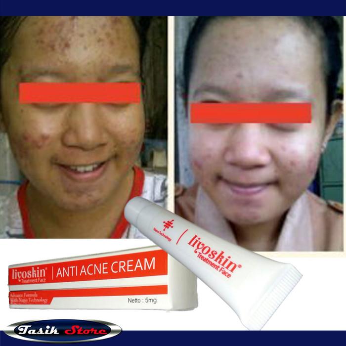 Foto Produk Liyoskin Anti Acne 100% Original - Obat Jerawat Herbal-Alami-Trulum dari Tasik Store