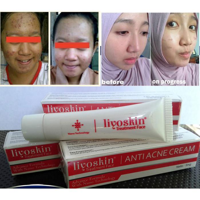 Foto Produk Liyoskin Anti Acne - Obat Salep Jerawat Pasir - Batu - Bisul -Punggung dari Istiqomah-Store