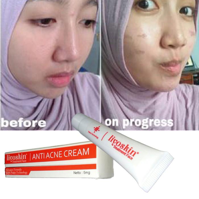 Foto Produk Obat Penghilang Segala Jerawat Liyoskin Acne -Acnes -Acnol-Membandel dari Istiqomah-Store