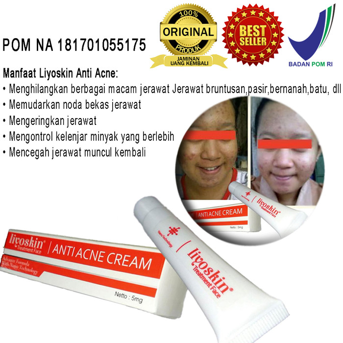 Foto Produk Obat Penghilang Segala Jerawat Liyoskin Acne -Acnes -Acnol-Membandel dari Tasik Store