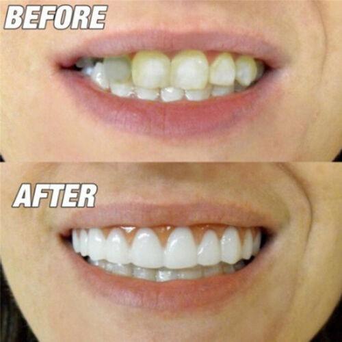 Jual Snap On Perfect Smile Fake Tooth Cover Comfort Fit Flex Teeth White Ut  - Kota Surabaya - Mazta Store   Tokopedia
